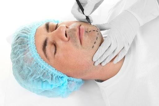Facial Reconstruction in Mesa, AZ